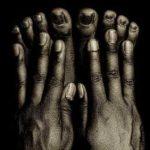 пальцы на ногах 6