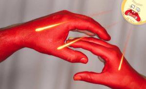 ожог руки2