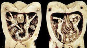 зубы13