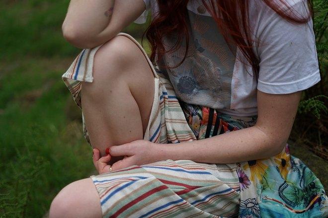 Девушка собирается почесать колено