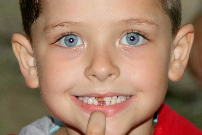 Сон о ребенке с выпавшим молочным зубом
