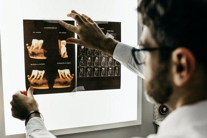 Приснилось, что врач смотрит на снимок зубов