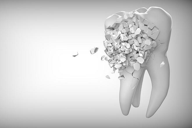 Сон о разрушенном зубе