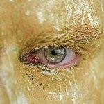 Глаз и необычный цвет лица